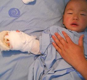 5岁小孩的再植手术
