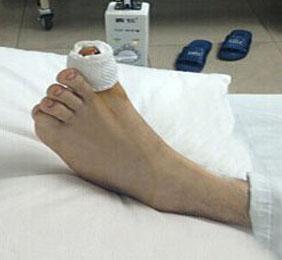 哪些患者不能做断趾再植术?