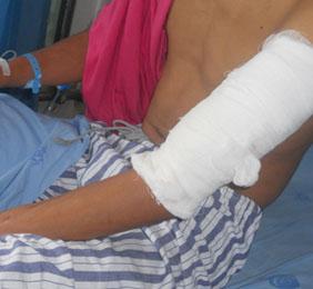 左前臂切割伤并血管神经肌腱损伤成功治