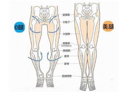 O型腿的矫正方法有哪些