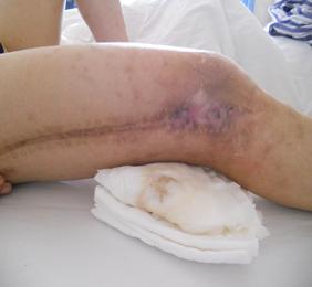 我院慢性骨髓炎的显微外科治疗
